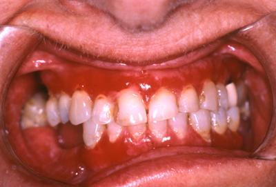 betændt tandkød behandling